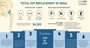 Total Hip Replacement Surgery in India - A snapshot